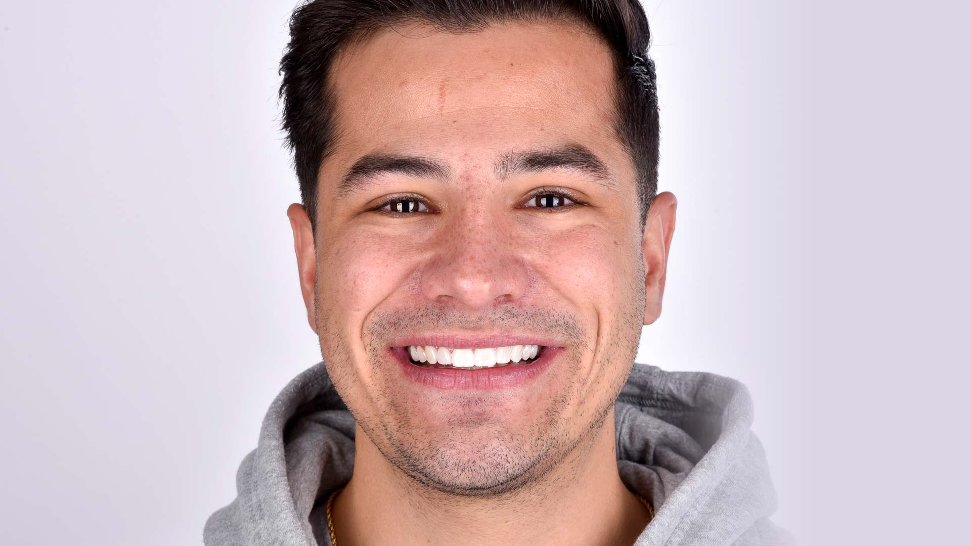 A photo of a man showing off his new, natural-looking smile after having Digital Smile Design dental treatment