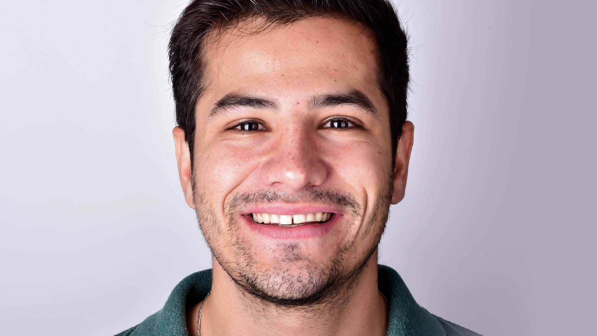 A young man smiling and showing his teeth before Digital Smile Design dental treatment